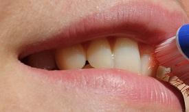 Geheimnis gewürznelke Zahn
